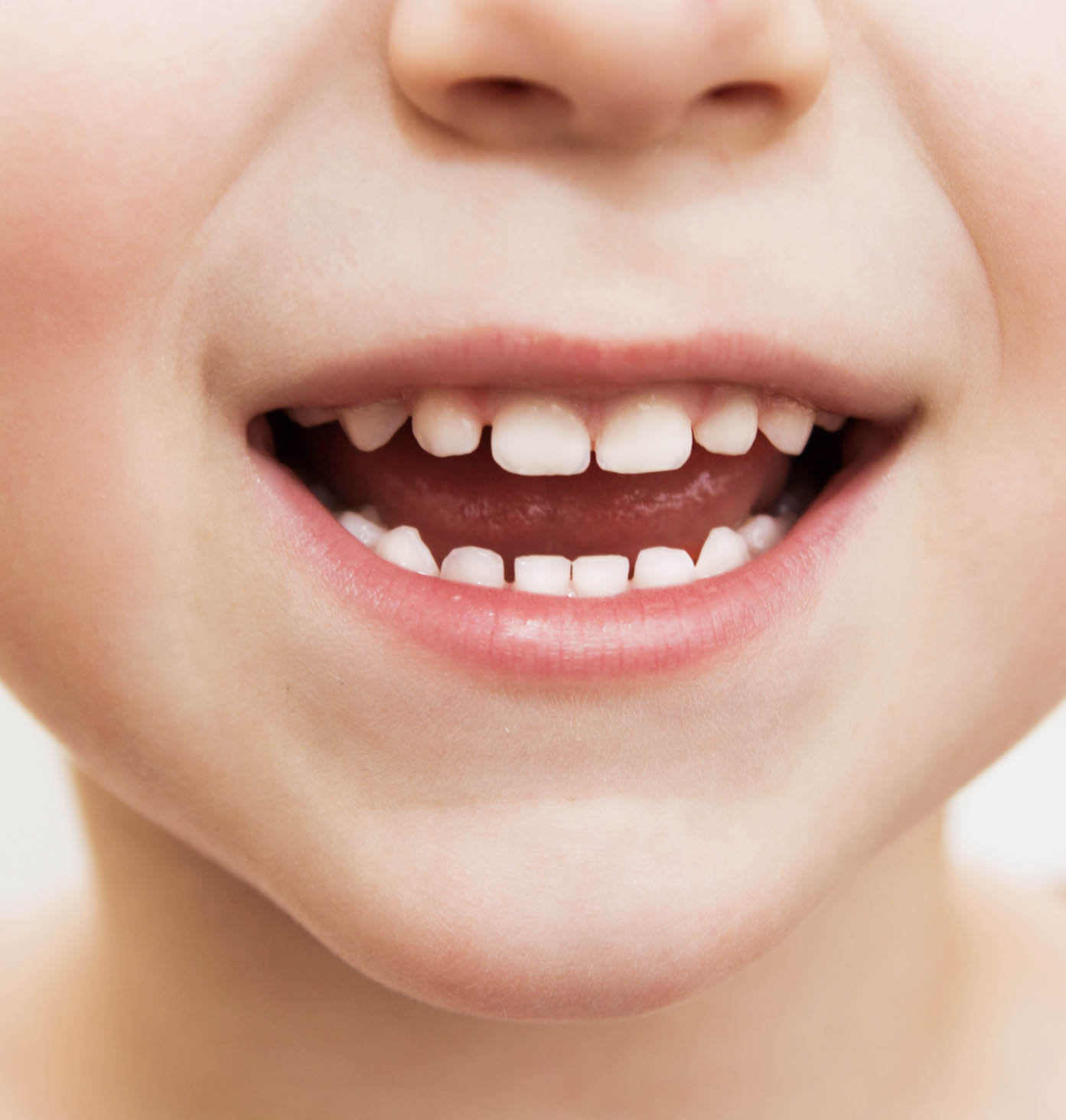 Child with primary teeth